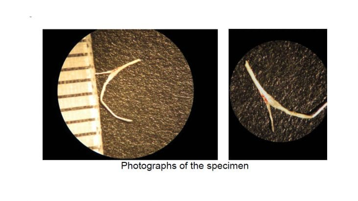 Analysis of a Fibrous Material Removed from an Experiencer's Shoulder (August 15, 2015, Northwestern, Pennsylvania)