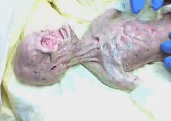 Alien Autopsy Video (Released 3-2008)
