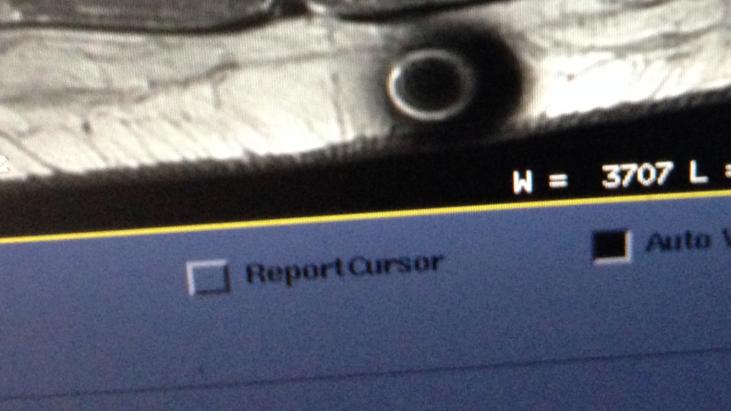 Unknown Object Appears in MRI