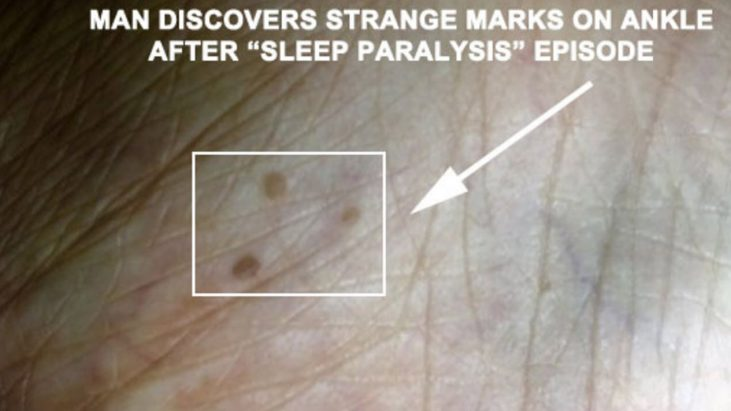 Man Finds 3 Strange Marks on Ankle After Sleep Paralysis Episode