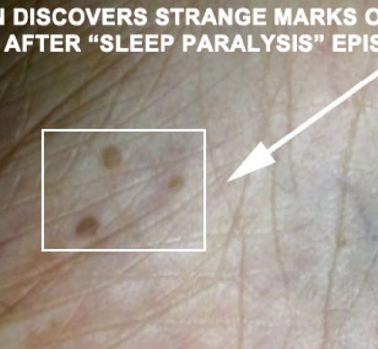 Man Finds 3 Strange Marks on Ankle After Sleep Paralysis Episode