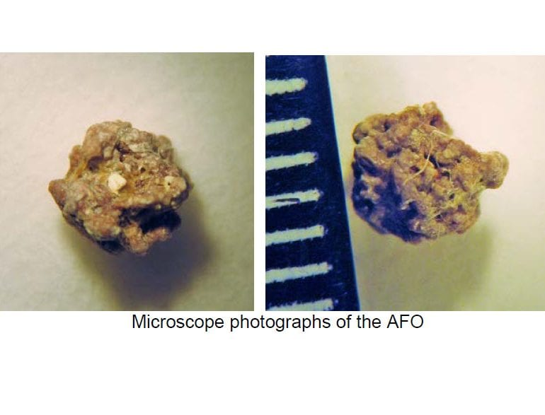 Analysis of an Anomalous Foreign Object (AFO) Expelled from the Throat of an Experiencer (July 24, 2014, Milwaukie, Oregon, CMS Case File: 58591)